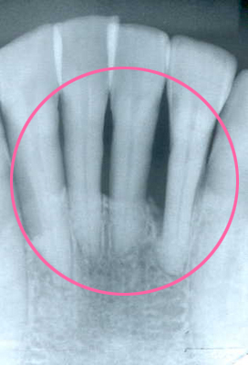 歯周病が進行した歯茎